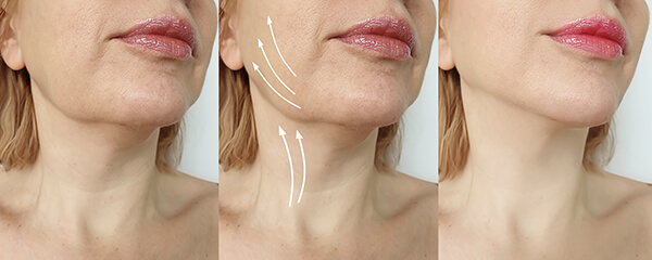 anti wrinkle treatments barnsley
